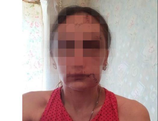 Осужден житель Урюпинска, изуродовавший бывшую жену бутылкой